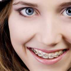 Patient's Own Bone May Help To Accelerate Orthodontics